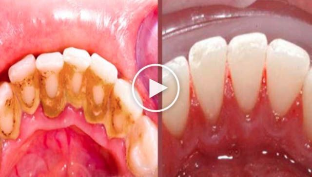 Truque genial para remover a placa bacteriana em 5 minutos