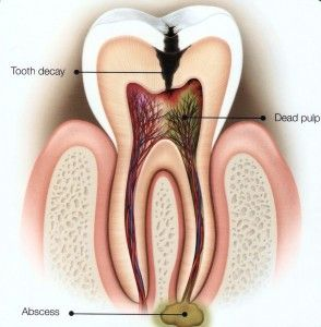 http://medical.miragesearch.com/treatment/dental-treatment/fillings-root-canal-treatment/ Root canal treatment (RCT) involves the removal of inflamed or diseased pulp from inside the tooth, in order to save the tooth. After the RCT, the patient must return for the placement of a crown. The crown strengthens the tooth and offers a seal that keeps contaminants out, thereby preventing the need for another RCT.