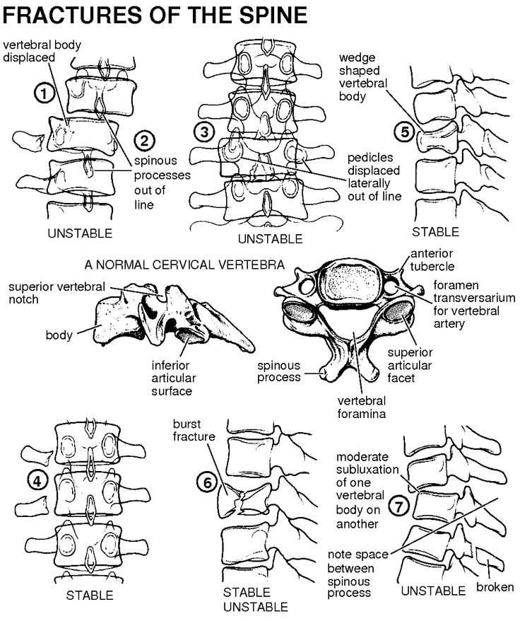 106 best Rad Tech Diagrams \ Study Tips images on Pinterest Rad - radiographer resume