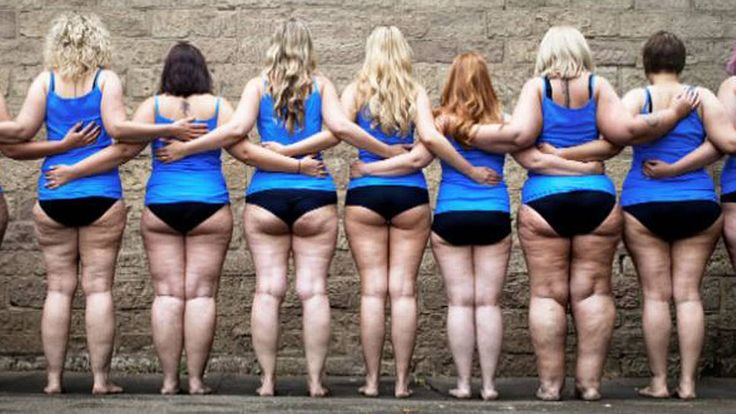Die Fettverteilungsstörung Liödem hat meist hormonelle Ursachen. Deshalb sind überwiegend Frauen davon betroffen. Die fortschreitende Krankheit ist nicht ...
