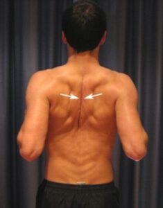Ромбовидная мышца спины зачастую является источником боли между лопатками. Рассмотрим несложные упражнения для укрепления и растяжки ромбовидной мышцы.