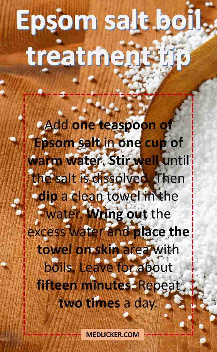 Epsom Salt Boil Treatment Tip