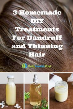 Dandruff or thinning hair can be an irritating and embarrassing situation for many people.  The good news is self-treatment can be very effective.These three natural treatments address those pesky white flakes and boost hair growth.  Not only are they all natural, but they can easily be made at home with ingredients you probably have on hand. #beauty #DIY
