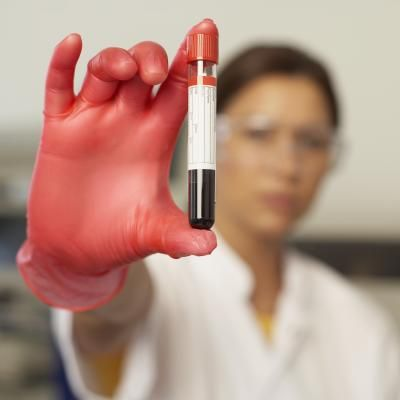 According to the MedlinePlus website, blood urea nitrogen, or BUN, is a product that forms in your blood when protein breaks down. Tests can measure the amount of urea nitrogen in your blood. Creatinine is a breakdown product of creatine, which is an important component of your muscles. Creatinine can be measured with a urine test.