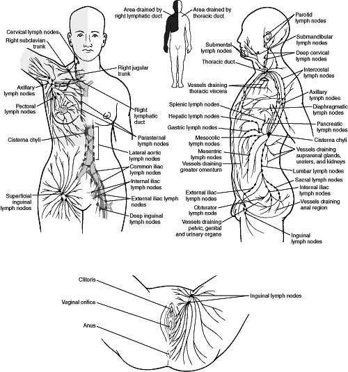 37 best Lympedema Lipedema Dercum's Disease Adiposa