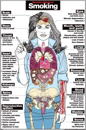 """A new anatomy poster from Algra Algra posters are painted and detailed beatifully and are perfect for any level of education. This anatomical poster comes in both paper and laminated formats. Harmful Effects of Smoking 24"""" X 36"""" Laminated Poster, http://www.amazon.com/dp/B00CD89GF2/ref=cm_sw_r_pi_awdm_Wbpbtb18K8E1H"""