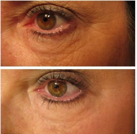 Results with Nerium