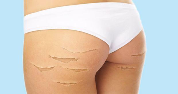 Les vergetures sont nuisibles à l'apparence de votre peau. Faites disparaître les vergetures grâce aux remèdes maison suivants