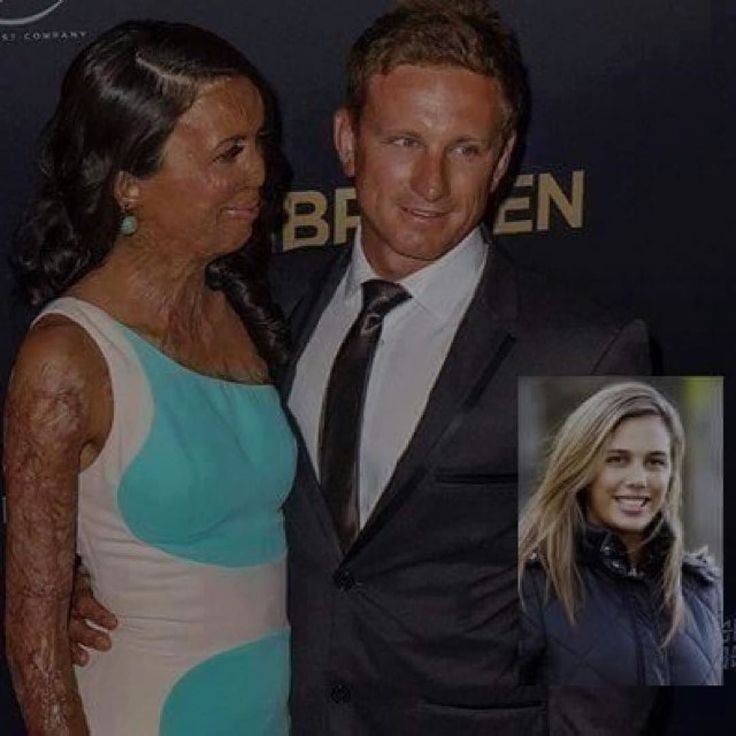 "Via @6amsuccess A True Gentlemen - The Australian ex-model Turia Pitt suffered burns to 65 per cent of her body lost her fingers and thumb on her right hand and spent five months in hospital after she was trapped by a grassfire in a 100 kilometre ultra-marathon in the Kimberley. Her boyfriend decided to quit his job to care for her recovery. Days ago in an interview for CNN they asked him: ""Did you at any moment think about leaving her and hiring someone to take care of her and moving on…"