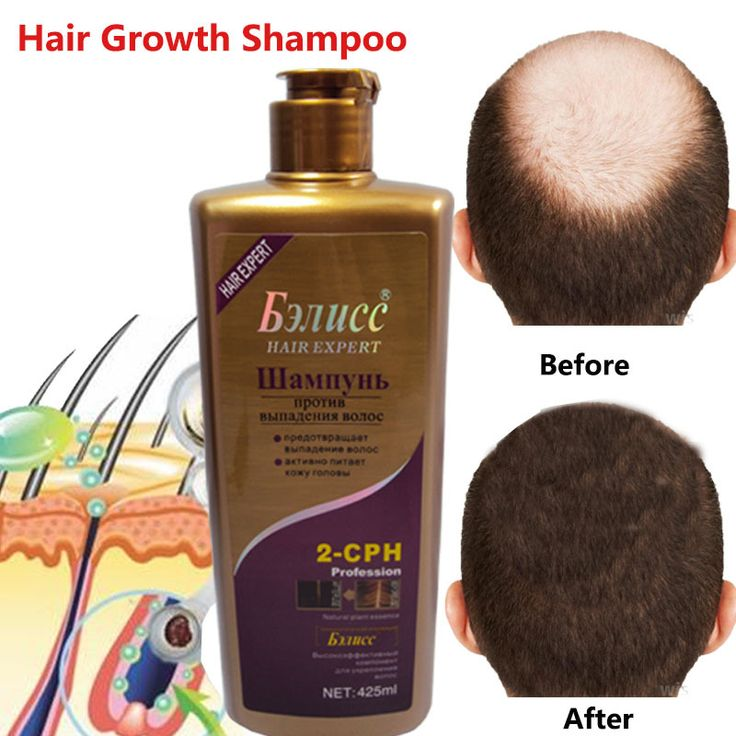Hair Shampoo Anti off Hair Growth Natural Herb Anti dandruff Shampoo Professional Care 425ml-in Shampoos from Beauty & Health on Aliexpress.com | Alibaba Group #fashion #beauty #shampoo #haircare