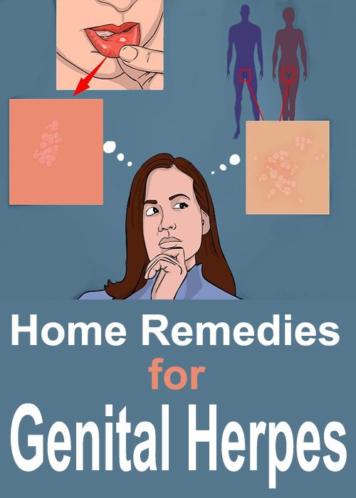 Home Remedies for Genital Herpes