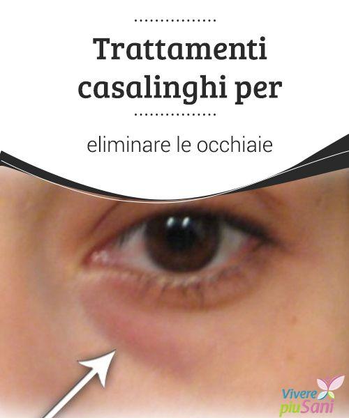 Trattamenti casalinghi per eliminare le occhiaie   Rimedi naturali e consigli per #eliminare le #occhiaie una volta per tutte  #Bellezza