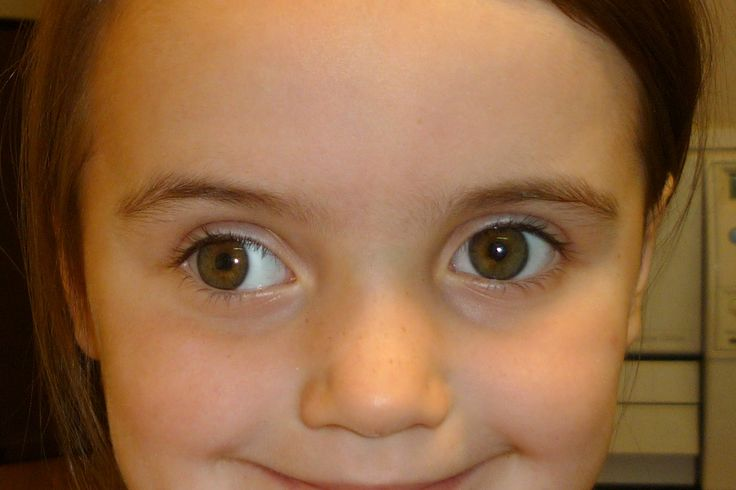 Exotropia (divergent squint)   eye   Pinterest   Divergent