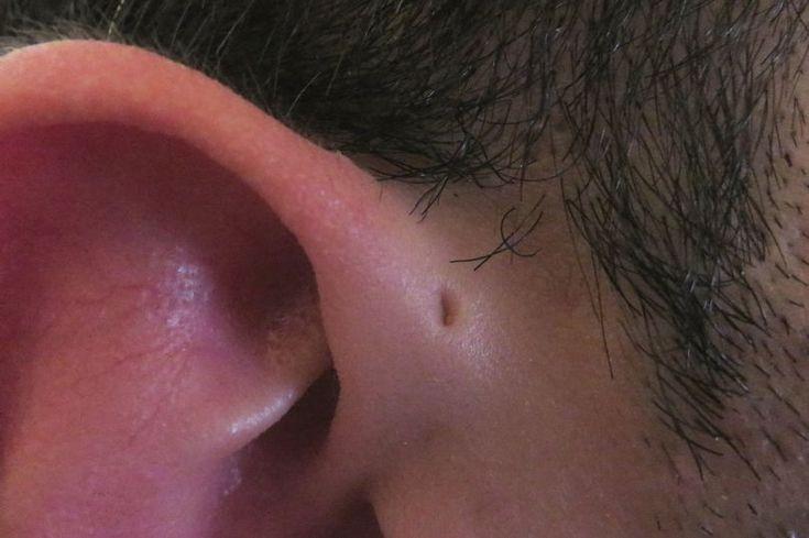 Γιατί μερικοί άνθρωποι γεννιούνται με αυτή τη μικρή τρύπα στο πάνω μέρος του αυτιού τους;