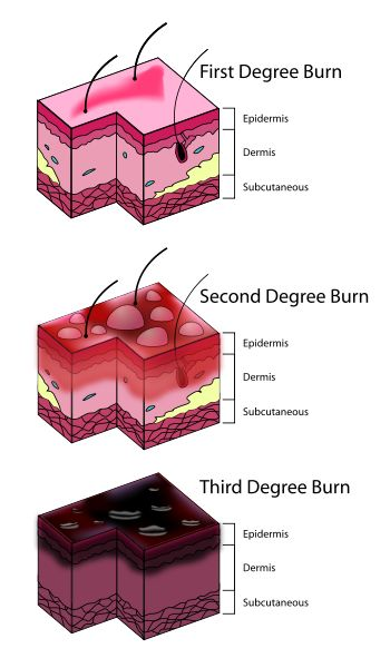 Classification of Burn Depths-this page has a lot of info on it if you go to all of the tabs