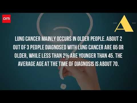 How Old Can You Get Lung Cancer? - WATCH THE VIDEO.    *** how to prevent lung cancer after quitting smoking ***   Young dying smokers share nightmares online whyquit. Lung cancer in patients under the age of 40 years ncbi nih. Googleusercontent search. Prevent smoking's many myths examined live science. Waiting to exhale lung cancer at 21...
