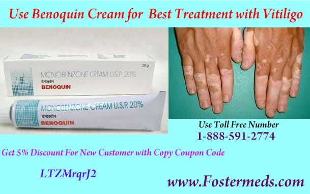 A Simple Medicine To Teat Vitiligo Disorders Is Monobenzone cream