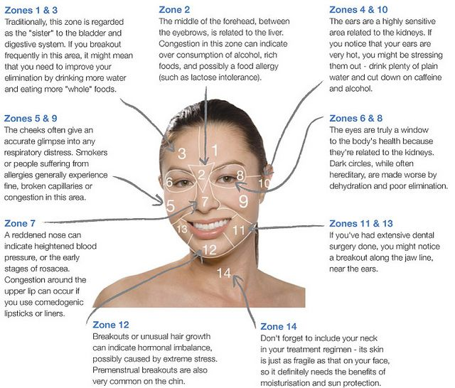 acne face mapping - what is your acne trying to tell you.
