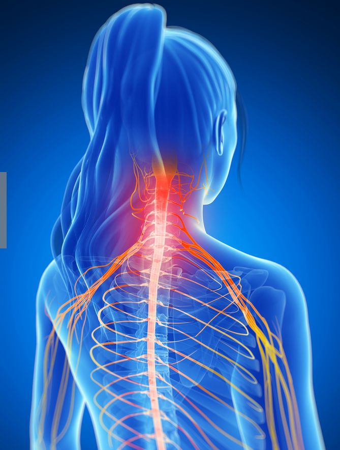 The 12 best Cervical Radiculopathy images on Pinterest ...