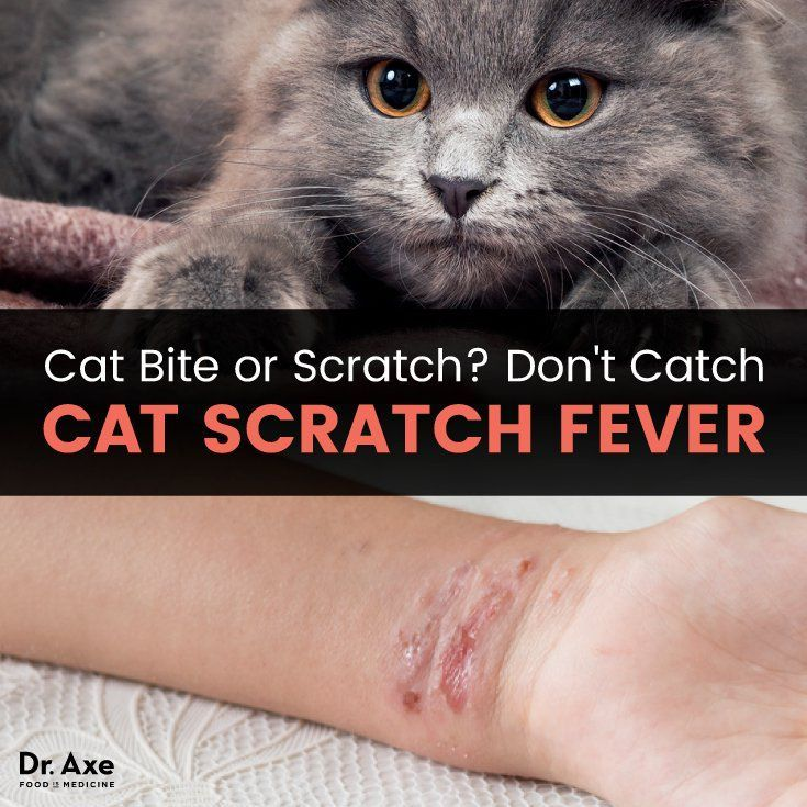 3 Marvelous About Cat Care Ideas Cat Biting Cat Scratching Cat Care