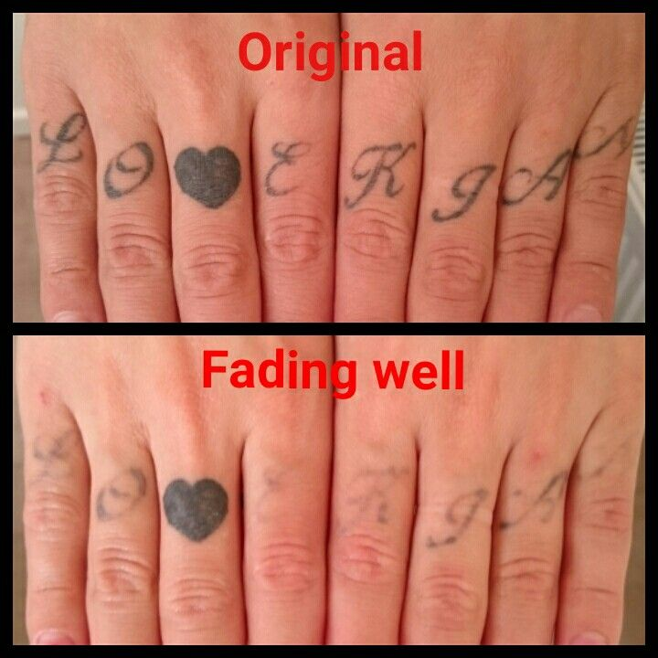 These Finger Tattoos Have Started Fading Away Nicely My Client Wants To Keep The Loveheart Www The Missing I Laser Tattoo Finger Tattoos Laser Tattoo Removal
