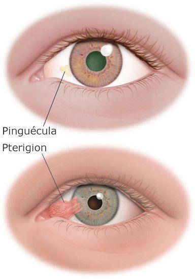 La pinguécula es un tumor benigno en la conjuntiva, es decir, un pequeño bulto que se suele formar en la superficie del globo ocular cerca de la nariz. Algunos pacientes …
