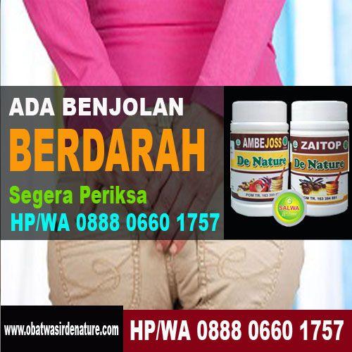 Obat Wasir Berdarah – Apabila Anda merasakan adanya gejala-gejala munculnya ambeien segera atasi sebelum penyakit ini berkembang ke tahap selanjutnya.
