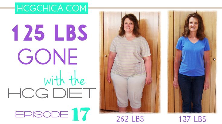 125 lbs Gone with hCG Injections despite hypothyroidism issue - Episode 17: hCG Diet Interviews - YouTube