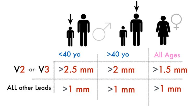 1. The ACC/AHA Criteria (1) (2)  ST-elevation in 2 contiguous leads that is:      * Men < 40: 2.5 mm ST-elevation in V2 or V3, 1 mm in any other lead      * Men > 40: 2.0 mm ST-elevation in V2 or V3, 1 mm in any other lead      * Women: >1.5 mm ST-elevation in V2 or V3, 1 mm in any
