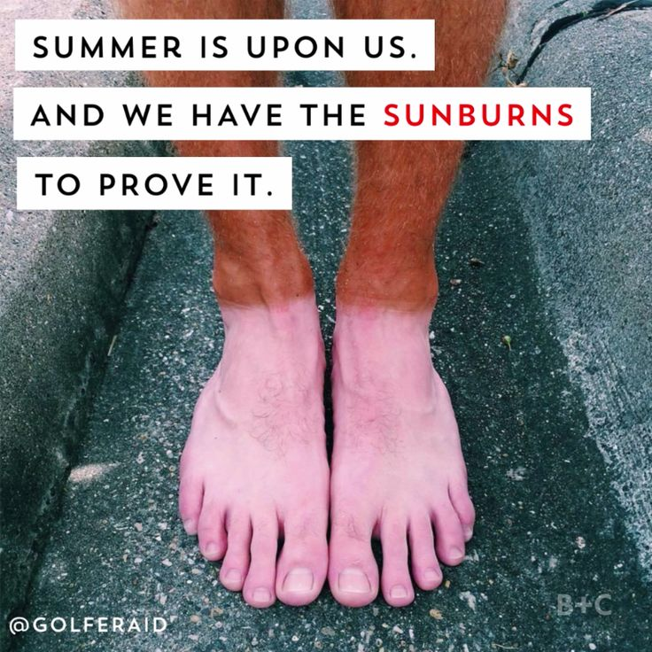 Get ready to LOL and feel immense pain for these summer sunburn fails.