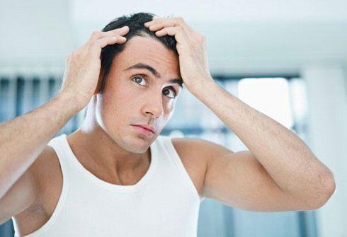 Erbe e rimedi naturali contro la caduta dei capelli