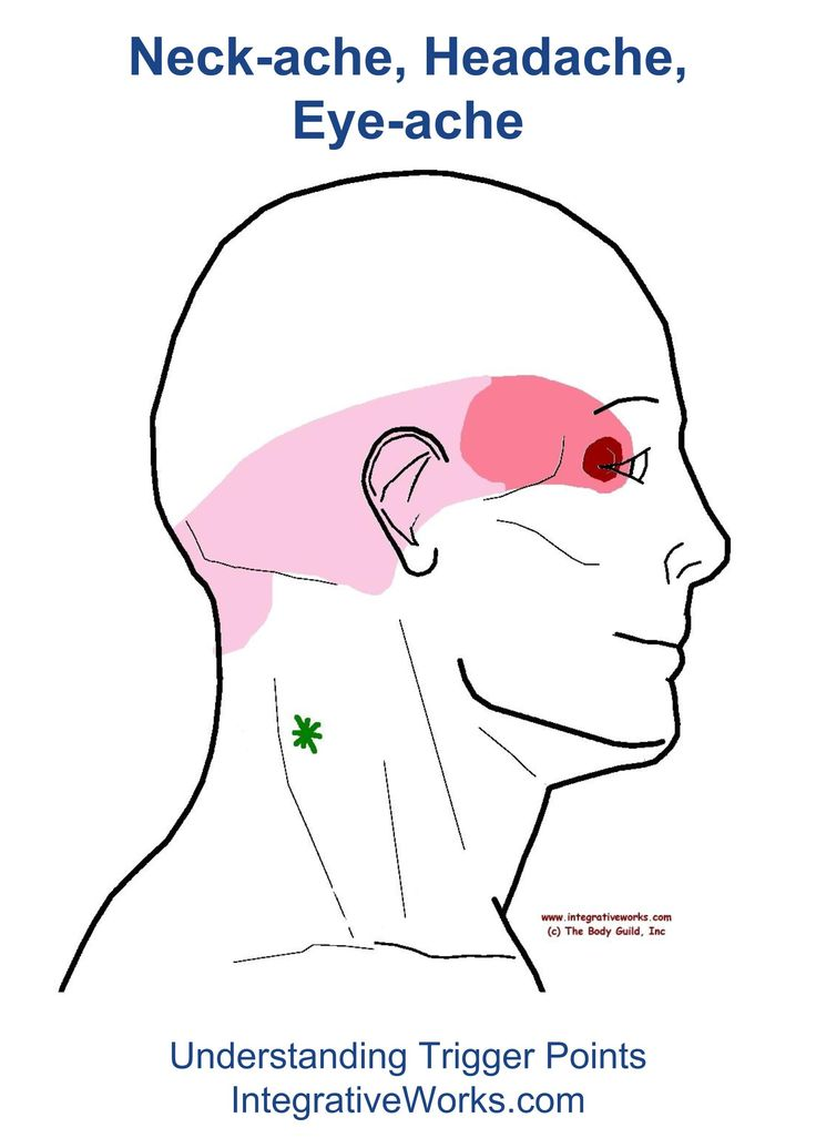 dolor de cabeza lado izquierdo atras