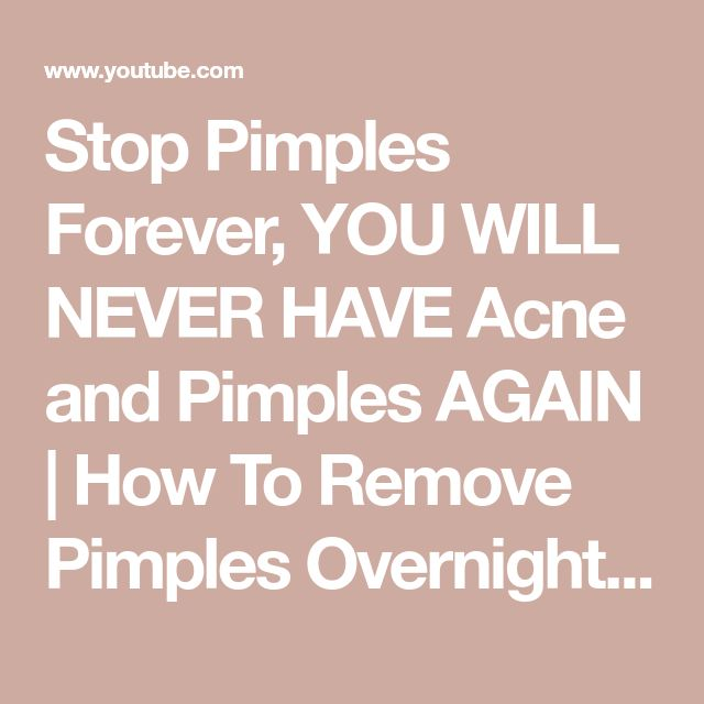 how to never get pimples
