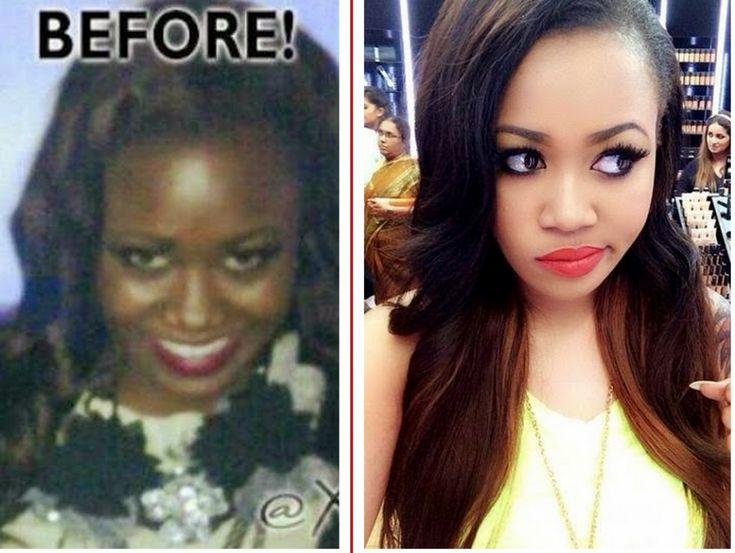 Vera Sidika Skin Before And After Beyonce Skin Bleaching