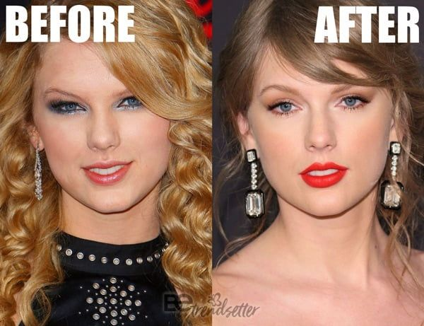 Taylor Swift Plastic Surgery Mystery Solved Be Trendsetter Taylor Swift Teeth Plastic Surgery Nose Contouring