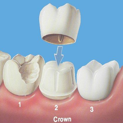 Different Types Of Porcelain Crowns
