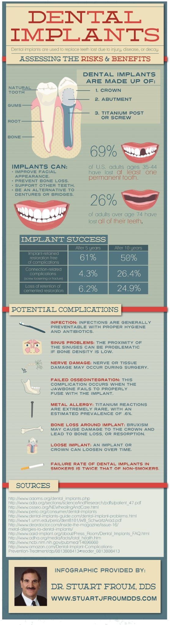 A useful infographic to understand dental implants. #dental #advice #infographic