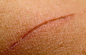Il faut agir dès que possible pour effacer les cicatrices ! Venez découvrir nos astuces et nos remèdes naturels pour vous en débarrasser !