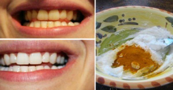 Υγεία - Ανακάτεψε 2 υλικά και τα έβαλε στα δόντια του. Το Αποτέλεσμα; ΑΠΛΑ ΔΕΝ ΥΠΑΡΧΕΙ! Ένα από τα πιο αντιαισθητικά πράγματα στον κόσμος είναι τα κίτρινα δόντια.