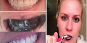 branquear-dentes
