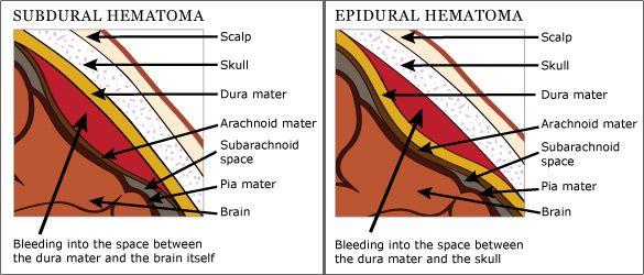subdural vs epidural hematoma