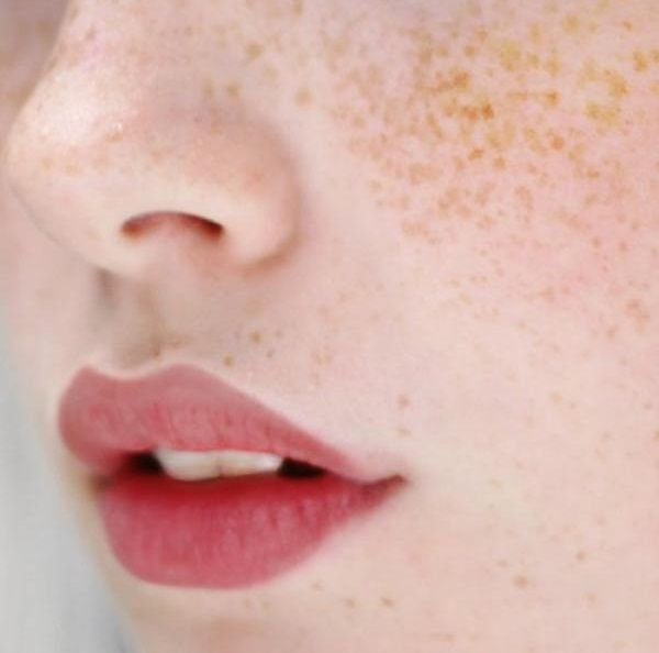 freckles: Natural Beauty