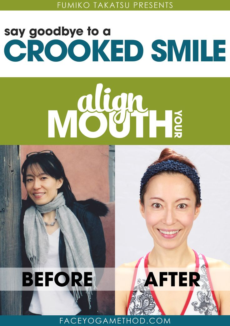 """Click here to get a FREE copy of the eBook """"Say Goodbye to a Crooked Smile""""  http://faceyogamethod.com/free?utm_campaign=free+page&utm_source=pinterest.com&utm_medium=social"""