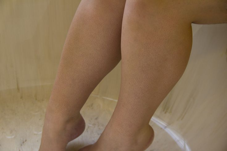 How to Get Rid of Dark Pores on Legs