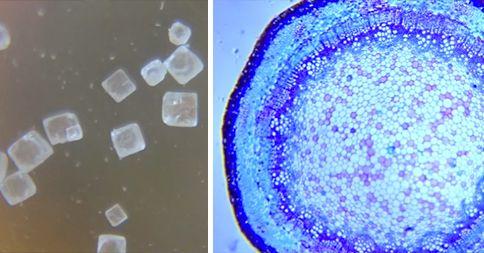 3 maneras de hacer un microscopio digital usando un teléfono