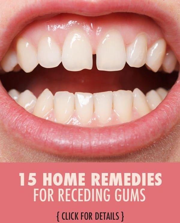 how to fix receding gums uk