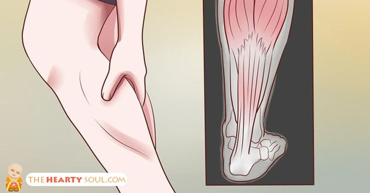 Leg cramps at night – nocturnal leg cramps – are pains that occur during the sleeping hours. They can cause a person to wake...