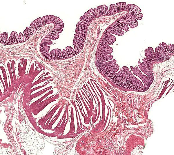 Colon histology