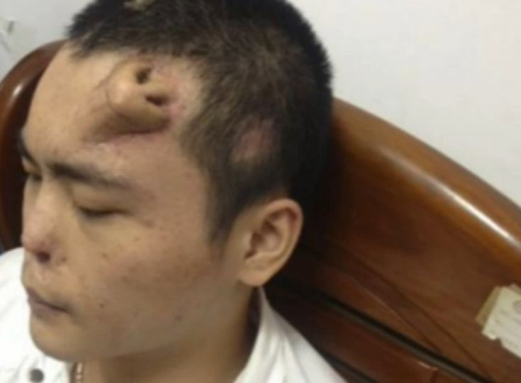 A man in China whose nose was damaged in an accident is growing a replacement nose on his forehead.