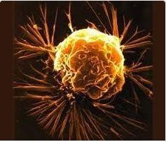 AIRLIFE MUNDIAL te dice algunos tipos de cáncer se producen por substancias en el medio ambiente. estos cánceres son causados por: humo de cigarrillos o cigarros, asbesto, radiación, sustancias químicas tanto naturales como hechas por el hombre, alcohol y luz solar. Es posible reducir el riesgo de contraer un cáncer, cuando uno limita su exposición a esos agentes nocivos. . http://airlifeservice.com/